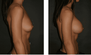 breast augmentation suirgery before and after
