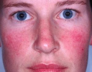 acne rosacea