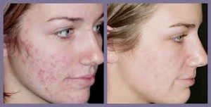 derma active before and after